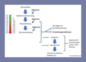 Grafik Entwicklung von Zahnbelägen und Entzündungen und deren Folgen
