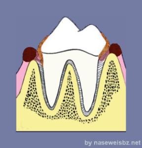 Grafik: Plaque- / Zahnsteinbildung oberhalb und unterhalb des Zahnfleisches, Gingivitis am oberen Zahnfleischrand