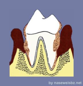Grafik Hochgradige Parodontitis